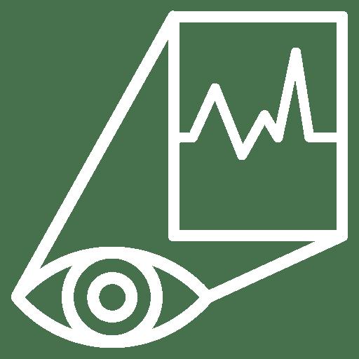Ilustração da visão de um olho sendo convertida em sinais elétricos